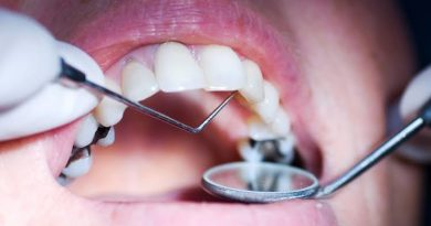 What happens if you don't fill in cavities?